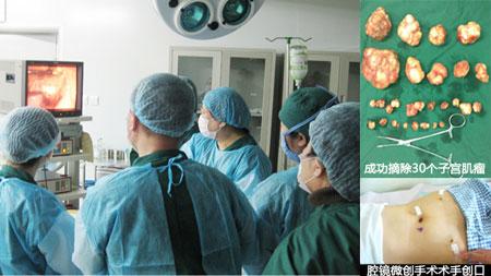 从刘女士子宫中取出的三十个子宫肌瘤